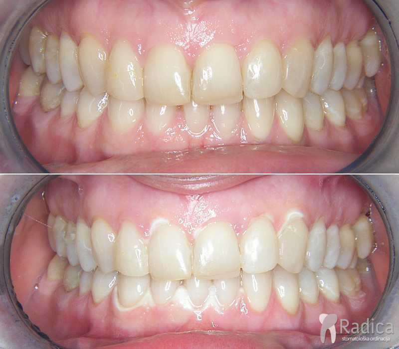 Ordinacijsko izbeljivanje zuba iskustva