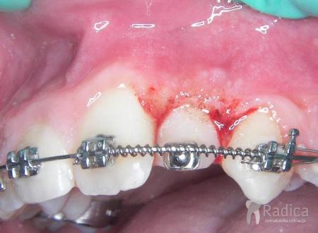 laser-prikazivanje-zuba-2