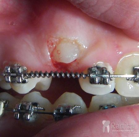 laser-prikazivanje-zuba-5