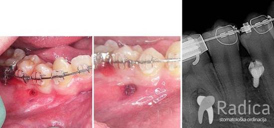 Priprema za ortodontske mikroimplantate