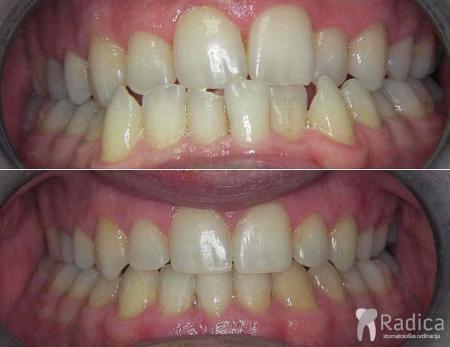 ortodontska-terapija-kompresija-ekstrakcija