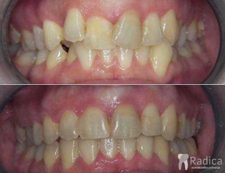 ortodontska-terapija-kompresija