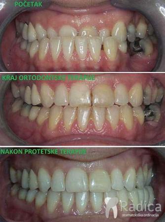 ortodontska-terapija-obrnuti-prijeklop-zuba