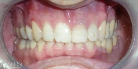 ortodontska-terapija-odrasli-002