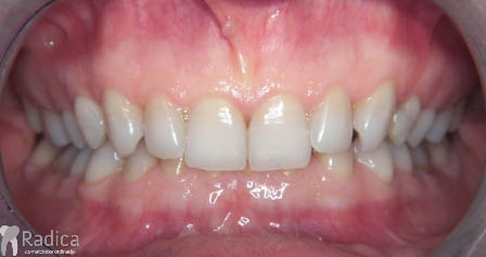ortodontska-terapija-odrasli-003