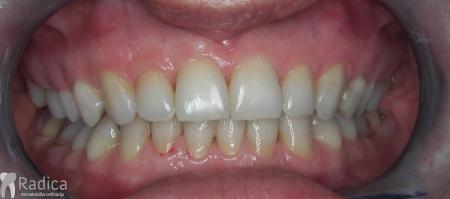 ortodontska-terapija-odrasli-004-poslije