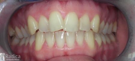 ortodontska-terapija-odrasli-005