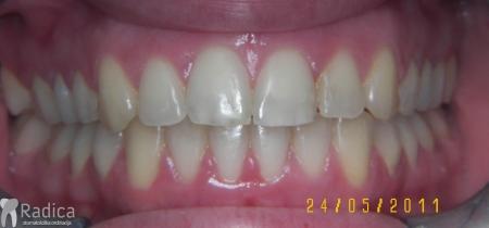 ortodontska-terapija-odrasli-006