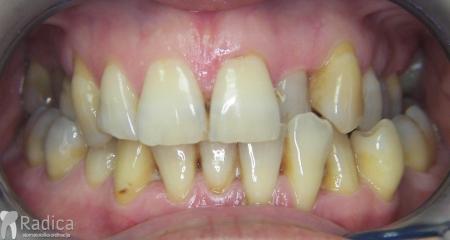 ortodontska-terapija-odrasli-007