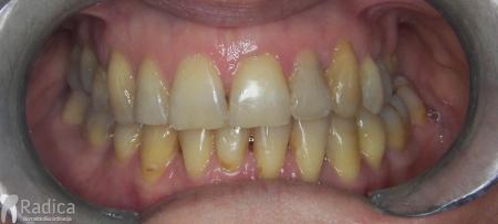 ortodontska-terapija-odrasli-008