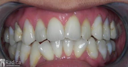 ortodontska-terapija-odrasli-009