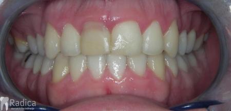 ortodontska-terapija-odrasli-014