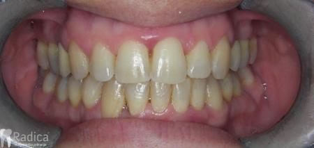 ortodontska-terapija-odrasli-016