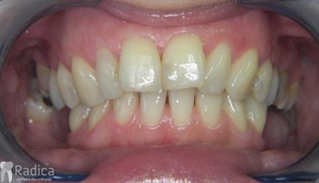 ortodontska-terapija-odrasli-019