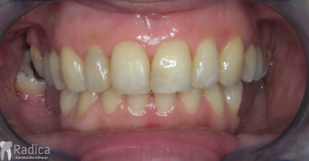 ortodontska-terapija-odrasli-020