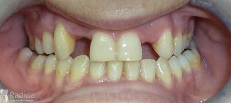ortodontska-terapija-odrasli