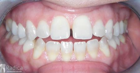 ortodontska-terapija-odrasli-028