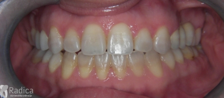 ortodontska-terapija-odrasli-029