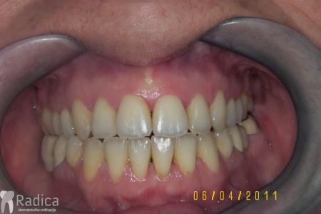 ortodontska-terapija-odrasli-031
