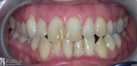 ortodontska-terapija-odrasli-032