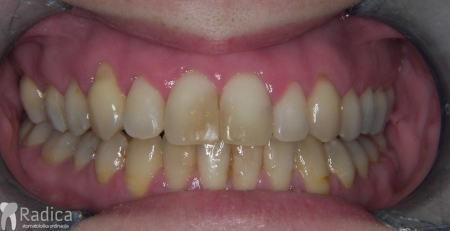 ortodontska-terapija-odrasli-033