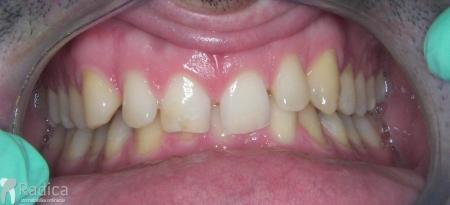 ortodontska-terapija-odrasli-034