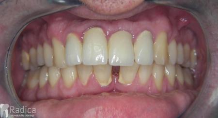 ortodontska-terapija-odrasli-041