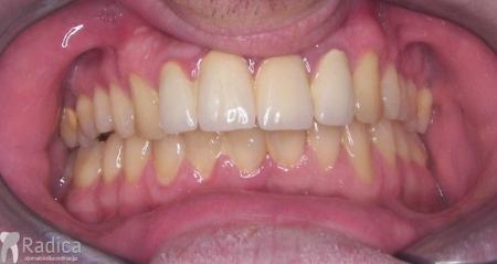 ortodontska-terapija-odrasli-042