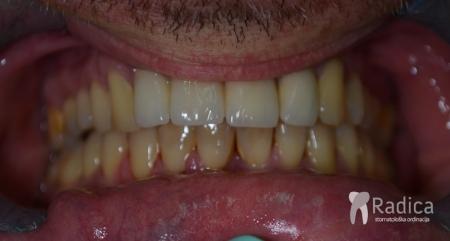 ortodontska-terapija-odrasli-043-3-godnie-nakon-kraja-th.