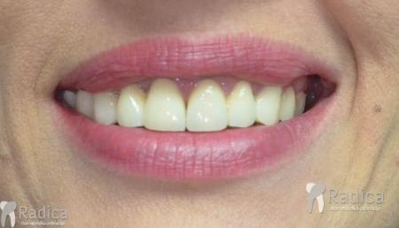 predprotetska-ortodoncija-2