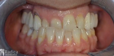 ortodontska-terapija-odrasli-057-osmjeh