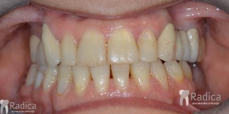 ortodontska-terapija-odrasli-059-kraj