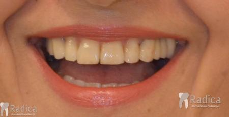 ortodontska-terapija-odrasli-060-osmjeh_