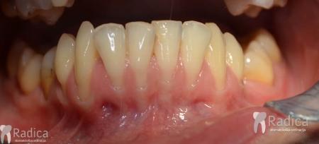ortodontska-terapija-odrasli-061