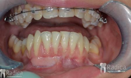 ortodontska-terapija-odrasli-062
