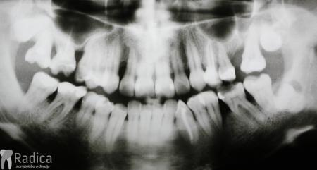 ortodontska-terapija-odrasli-064.-Inicijalna-paradontoloska-terapija-prije