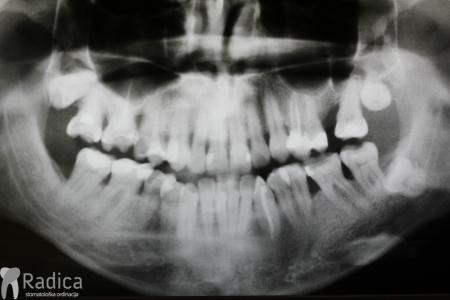 ortodontska-terapija-odrasli-065-Inicijalna-parodontoloska-terapija-poslije