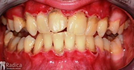 ortodontska-terapija-odrasli-66-Nekrotizirajucu-ulcerativni-parodontitis-prije