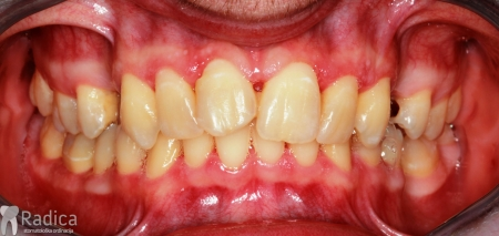 ortodontska-terapija-odrasli-67-Nekrotizirajuci-ulcerativni-parodontitis--dva-tjedna-nakon-terapije