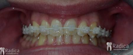ortodontska-terapija-odrasli-68-Truklear-bravice