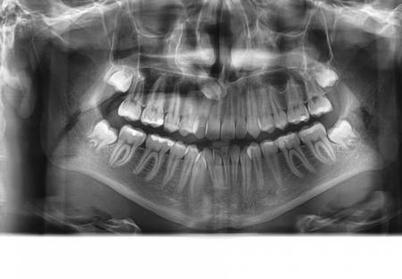 ortodontska-terapija-odrasli-69-Impaktirani-ocnjak--curin-