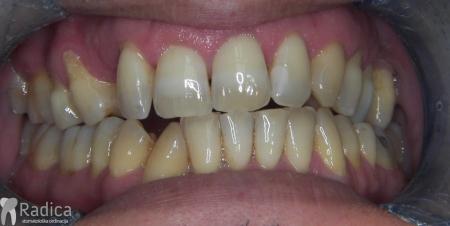 ortodontska-terapija-odrasli-71-Impaktirani-ocnjak