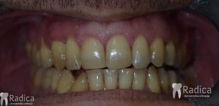 ortodontska-terapija-odrasli-73-Impaktirani-ocnjak