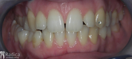 ortodontska-terapija-odrasli-75-impaktirani-donji-ocnjak
