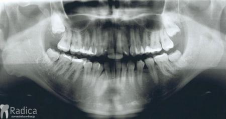 ortodontska-terapija-odrasli-77-impaktirani-donji-ocnjak
