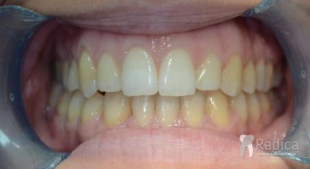 ortodontska-terapija-odrasli-81-