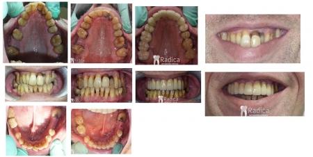 ortodontska-terapija-odrasli-paradentoza.jpg