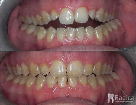 ortodontska-terapija-otvoreni-zagriz