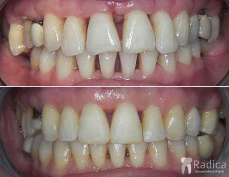 ortodontska-terapija-paradontitis-1