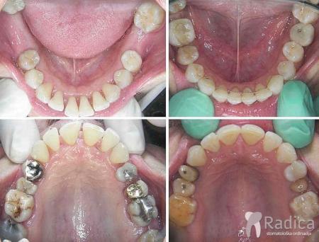 ortodontska-terapija-paradontitis-2